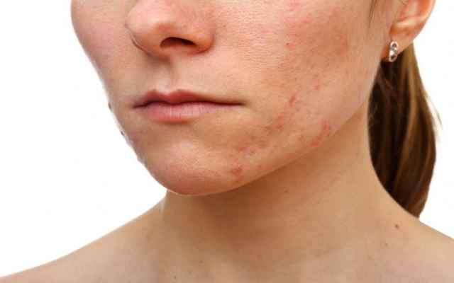 7 consejos de antaño para deshacerte de las cicatrices del acné y las imperfecciones en la piel