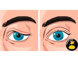 7 consejos para deshacerte de los parpados caídos y obtener una mirada perfecta