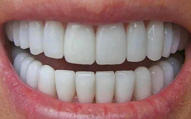 8 formas sencillas de revertir las caries y sanar el deterioro dental