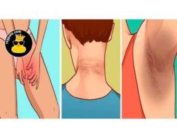 Retire esas feas manchas oscuras en 15 minutos